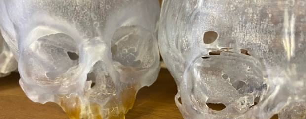 Craniofacial Models