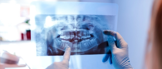Close-up of female doctor pointing at teeth x-ray image at dental office.